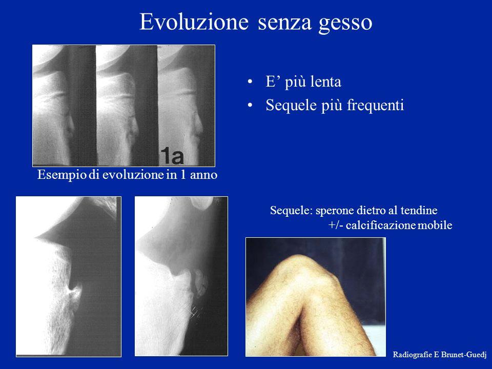 Evoluzione senza gesso