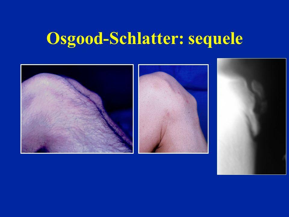 Osgood-Schlatter: sequele