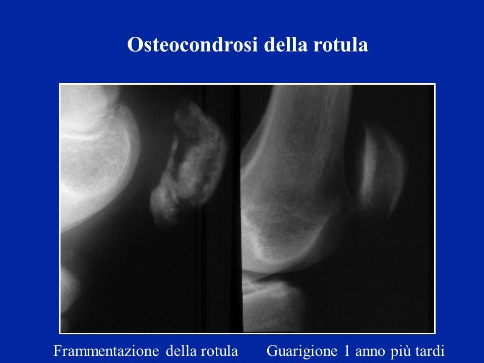 Osteocondrosi della rotula