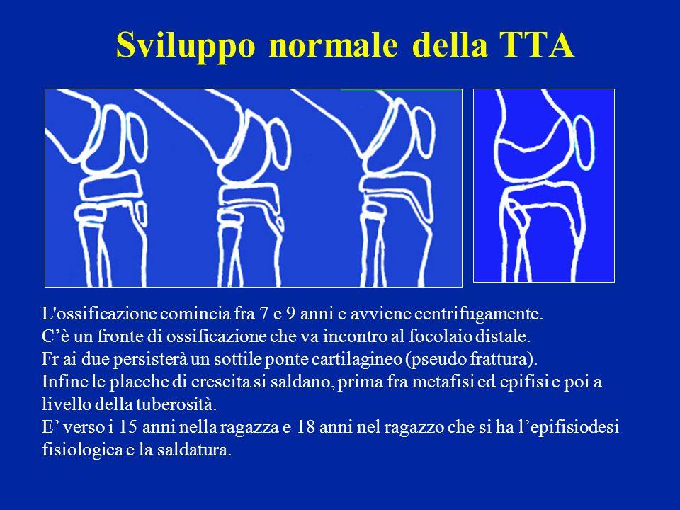 Sviluppo normale della TTA
