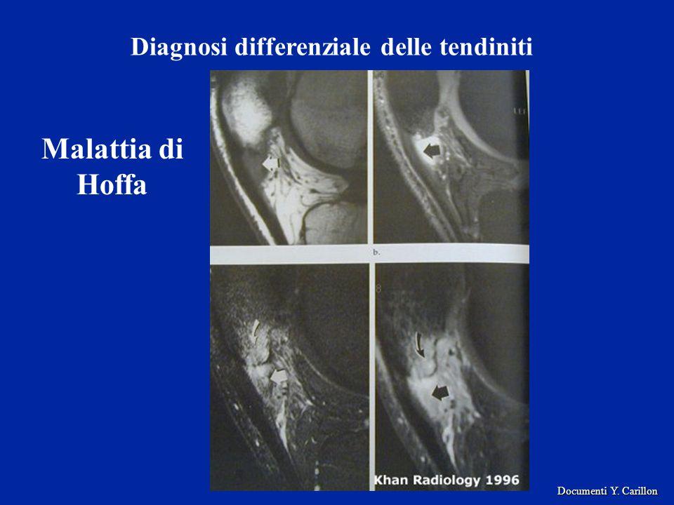 Diagnosi differenziale delle tendiniti