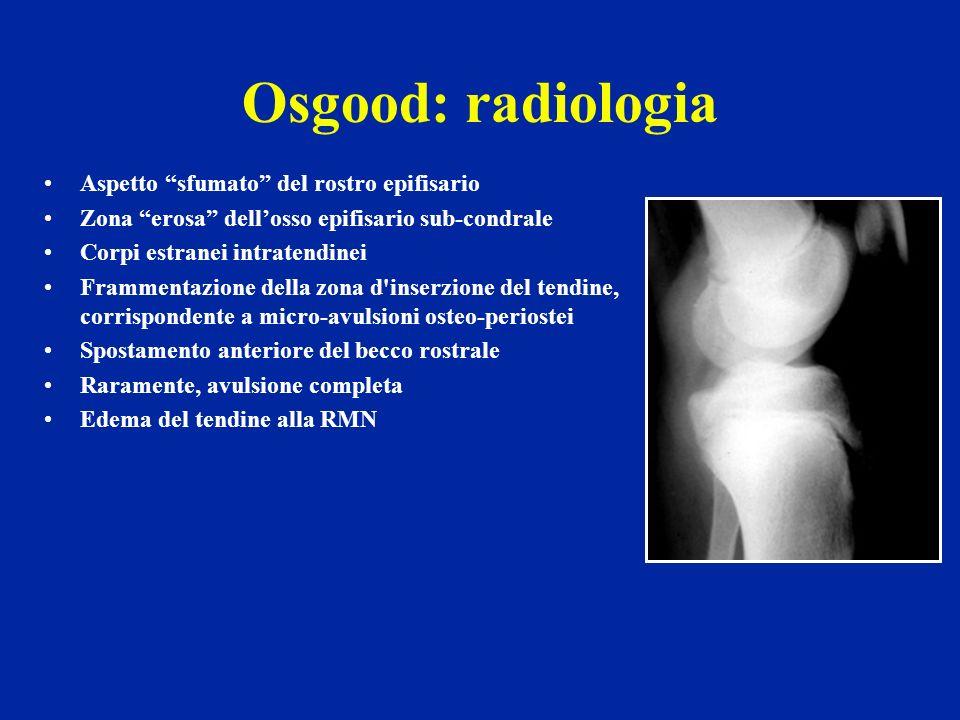 Osgood: radiologia Aspetto sfumato del rostro epifisario
