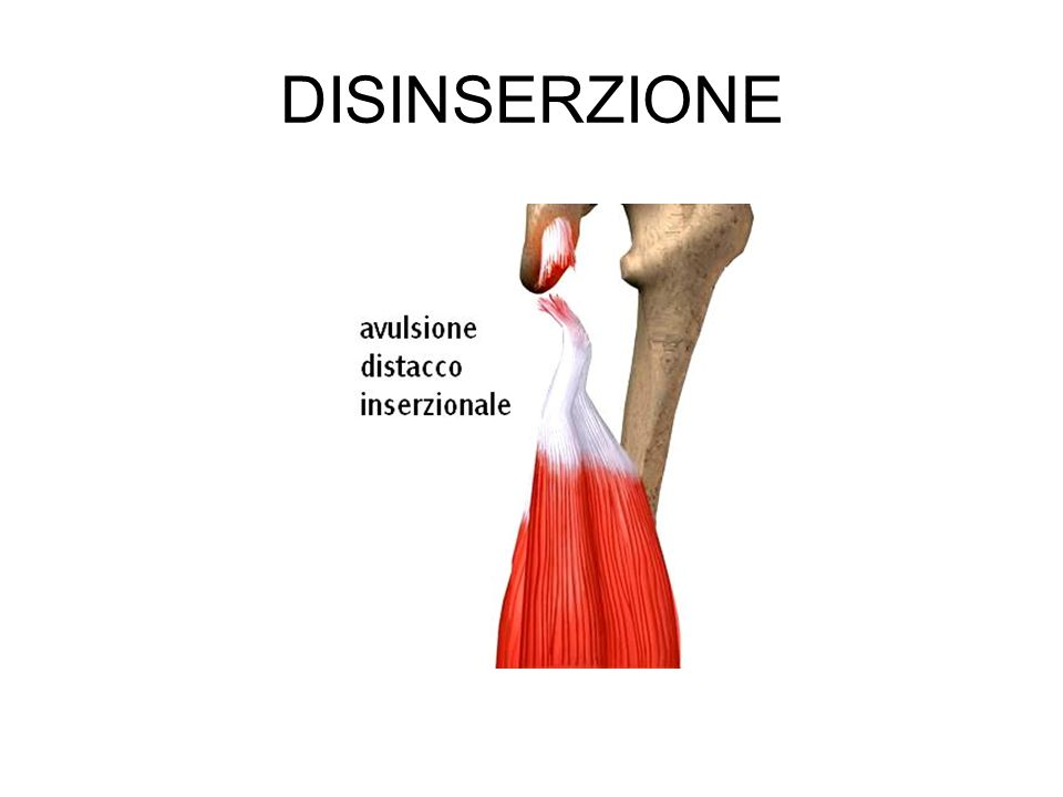 DISINSERZIONE