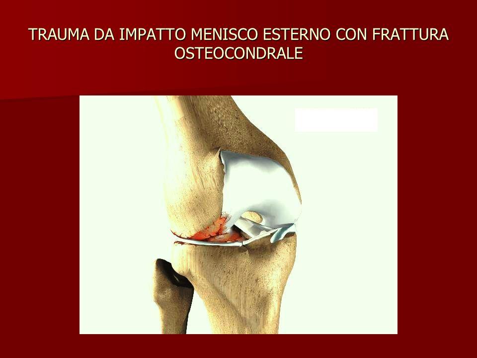 TRAUMA DA IMPATTO MENISCO ESTERNO CON FRATTURA OSTEOCONDRALE