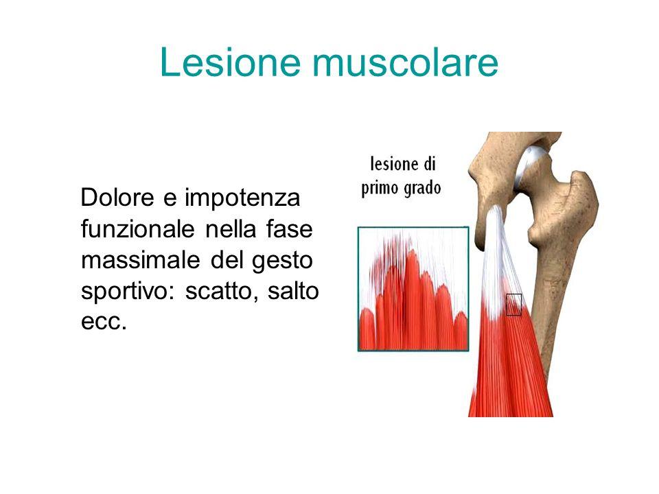 Lesione muscolare Dolore e impotenza funzionale nella fase massimale del gesto sportivo: scatto, salto ecc.