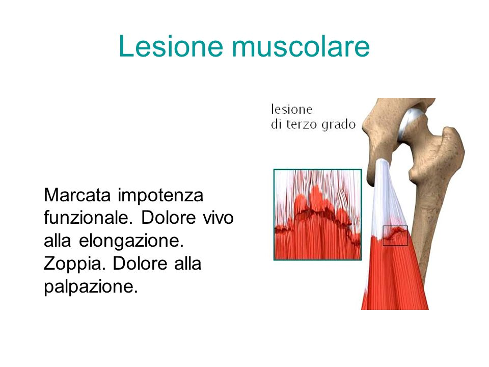 Lesione muscolare Marcata impotenza funzionale. Dolore vivo alla elongazione.