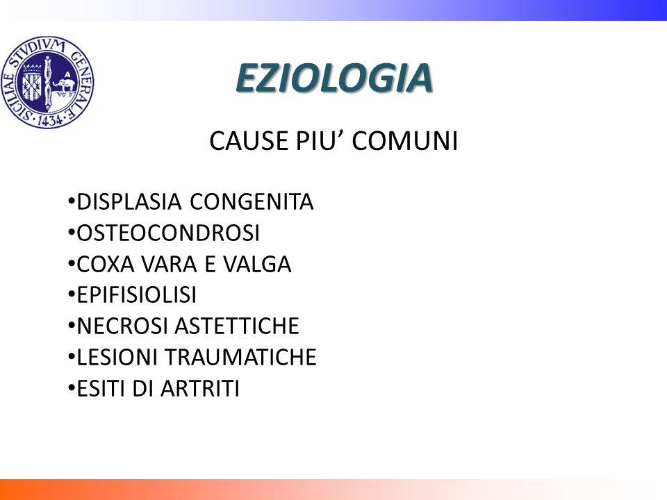 EZIOLOGIA CAUSE PIU' COMUNI DISPLASIA CONGENITA OSTEOCONDROSI