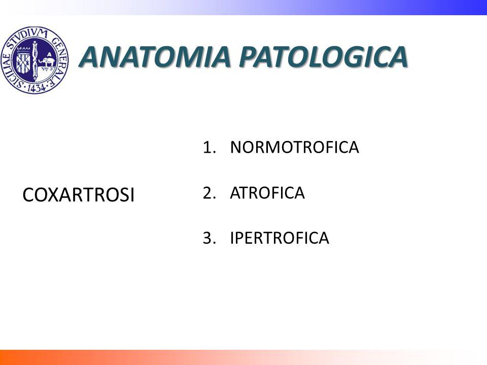 ANATOMIA PATOLOGICA COXARTROSI NORMOTROFICA ATROFICA IPERTROFICA