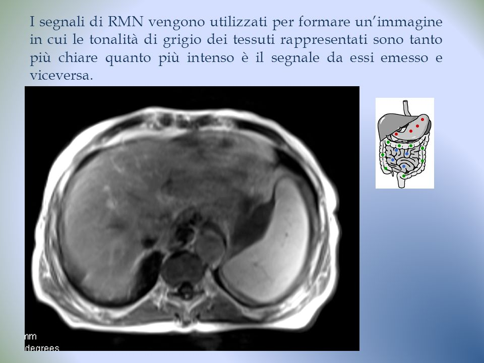 I segnali di RMN vengono utilizzati per formare un'immagine in cui le tonalità di grigio dei tessuti rappresentati sono tanto più chiare quanto più intenso è il segnale da essi emesso e viceversa.