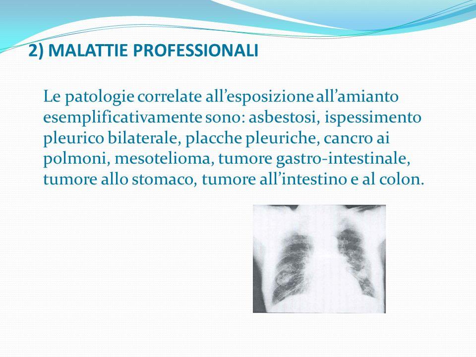 2) MALATTIE PROFESSIONALI