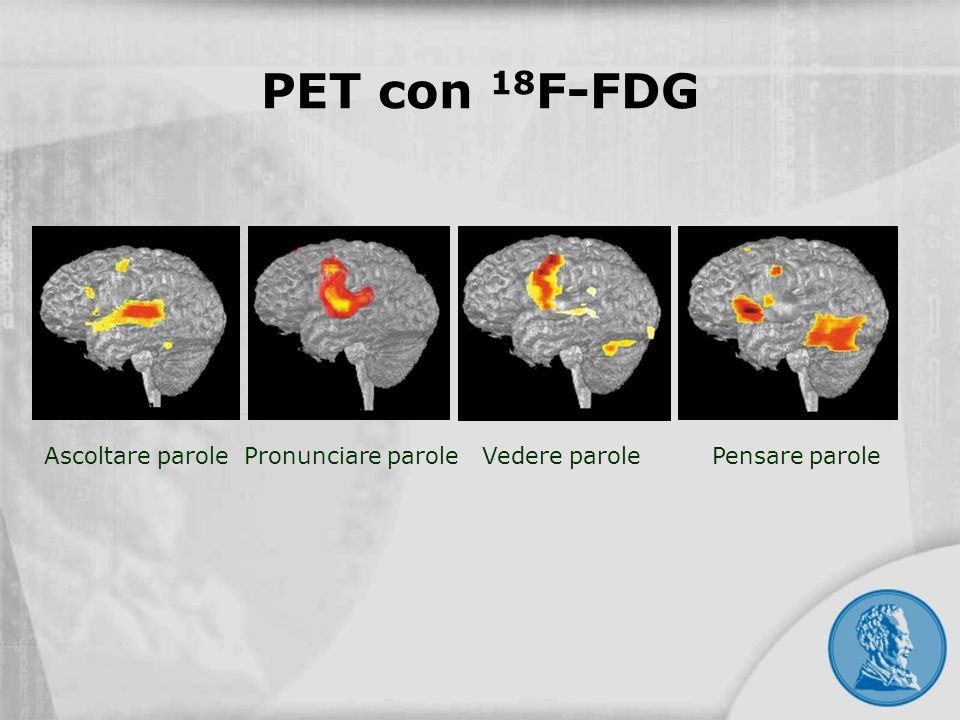 PET con 18F-FDG Ascoltare parole Pronunciare parole Vedere parole Pensare parole
