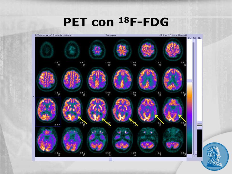 PET con 18F-FDG