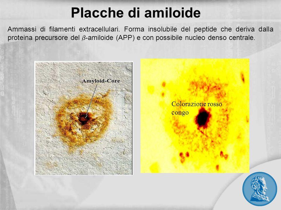 Placche di amiloide