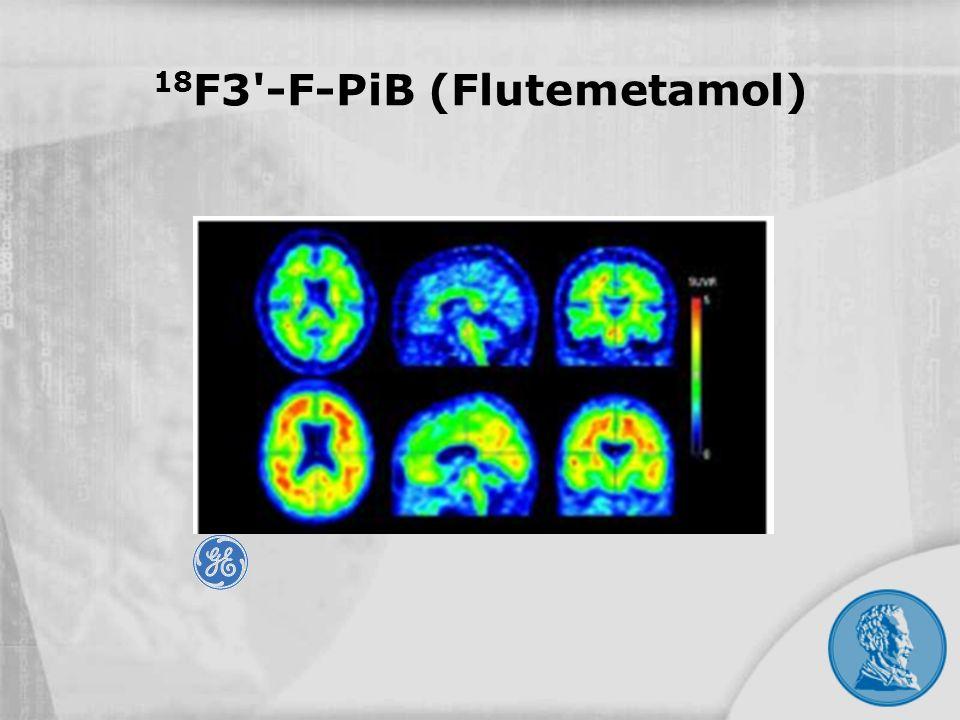 18F3 -F-PiB (Flutemetamol)