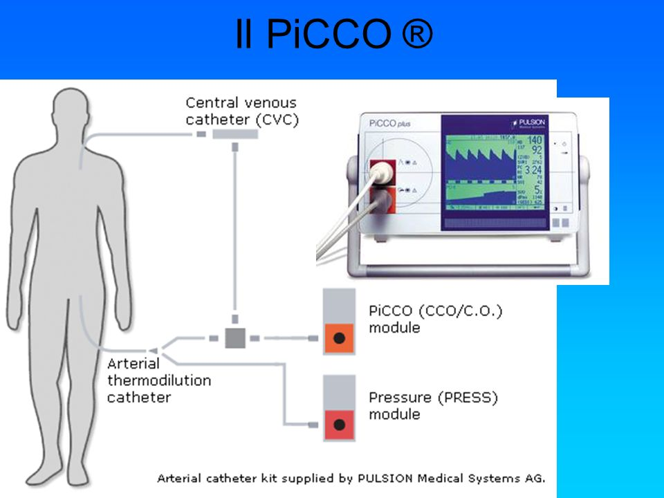 Il PiCCO ® Permette una valutazione accurata dell'emodinamica del paziente.