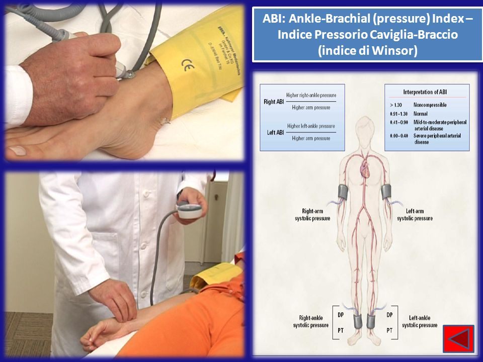 ABI: Ankle-Brachial (pressure) Index – Indice Pressorio Caviglia-Braccio