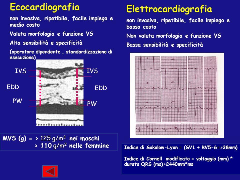 Ecocardiografia Elettrocardiografia IVS IVS EDD EDD PW PW