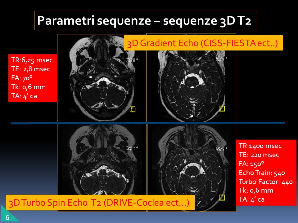 Parametri sequenze – sequenze 3D T2