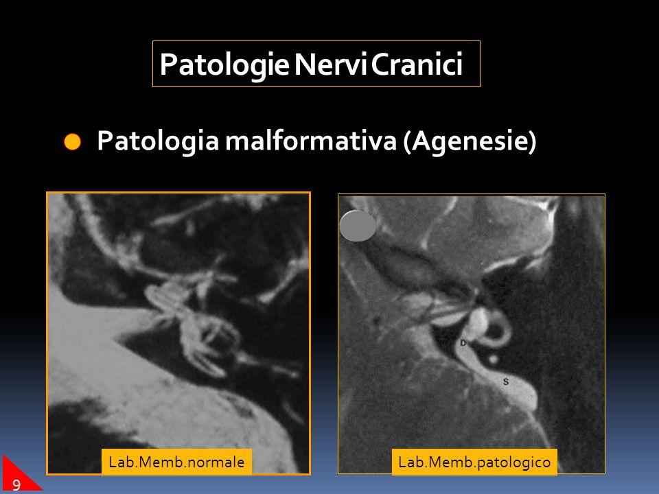 Patologie Nervi Cranici