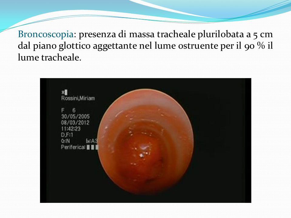 Broncoscopia: presenza di massa tracheale plurilobata a 5 cm dal piano glottico aggettante nel lume ostruente per il 90 % il lume tracheale.