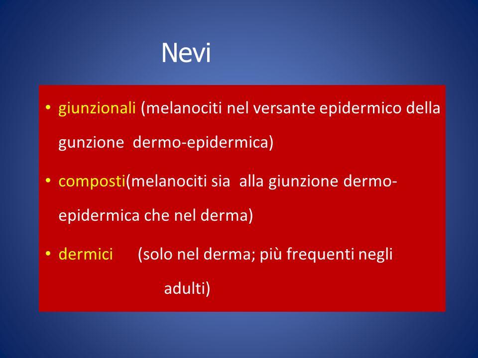 Nevi giunzionali (melanociti nel versante epidermico della gunzione dermo-epidermica)