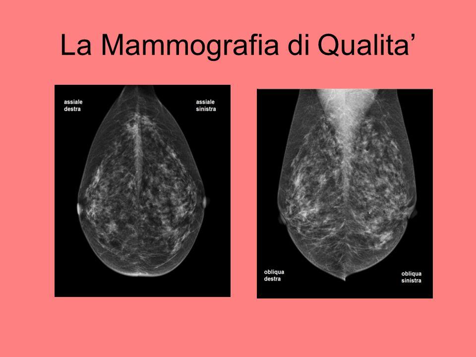 La Mammografia di Qualita'