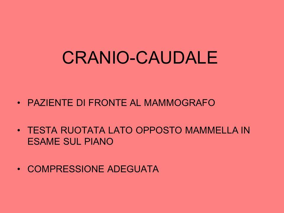CRANIO-CAUDALE PAZIENTE DI FRONTE AL MAMMOGRAFO