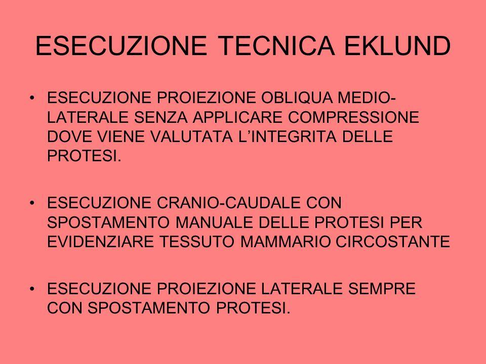 ESECUZIONE TECNICA EKLUND