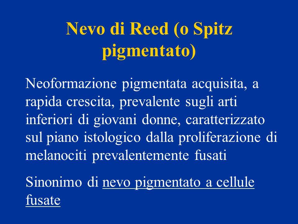 Nevo di Reed (o Spitz pigmentato)