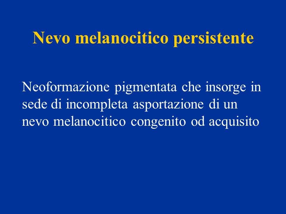 Nevo melanocitico persistente