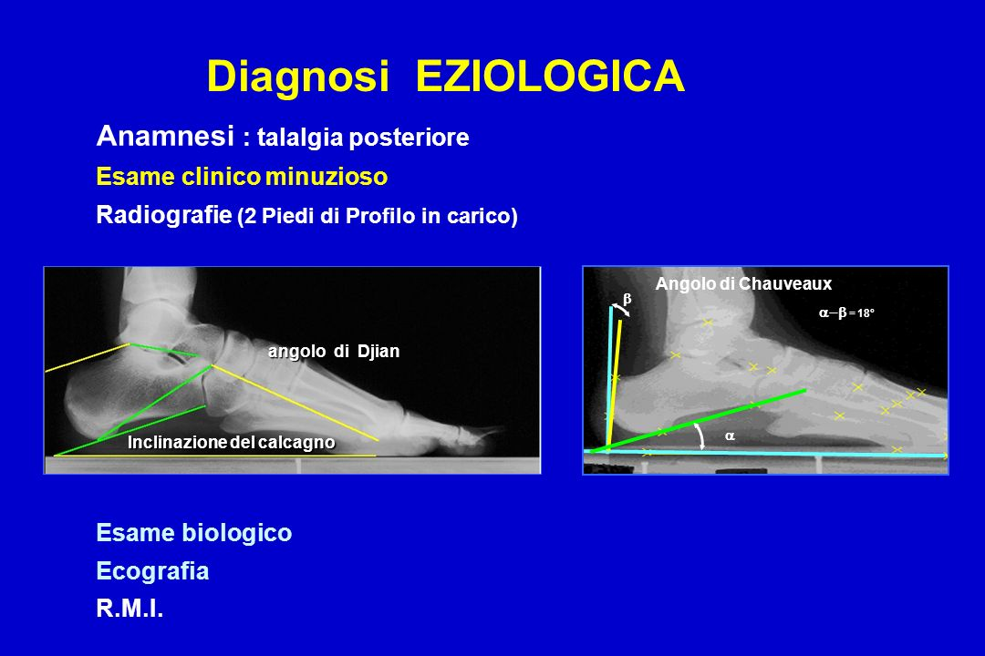 Diagnosi EZIOLOGICA Anamnesi : talalgia posteriore