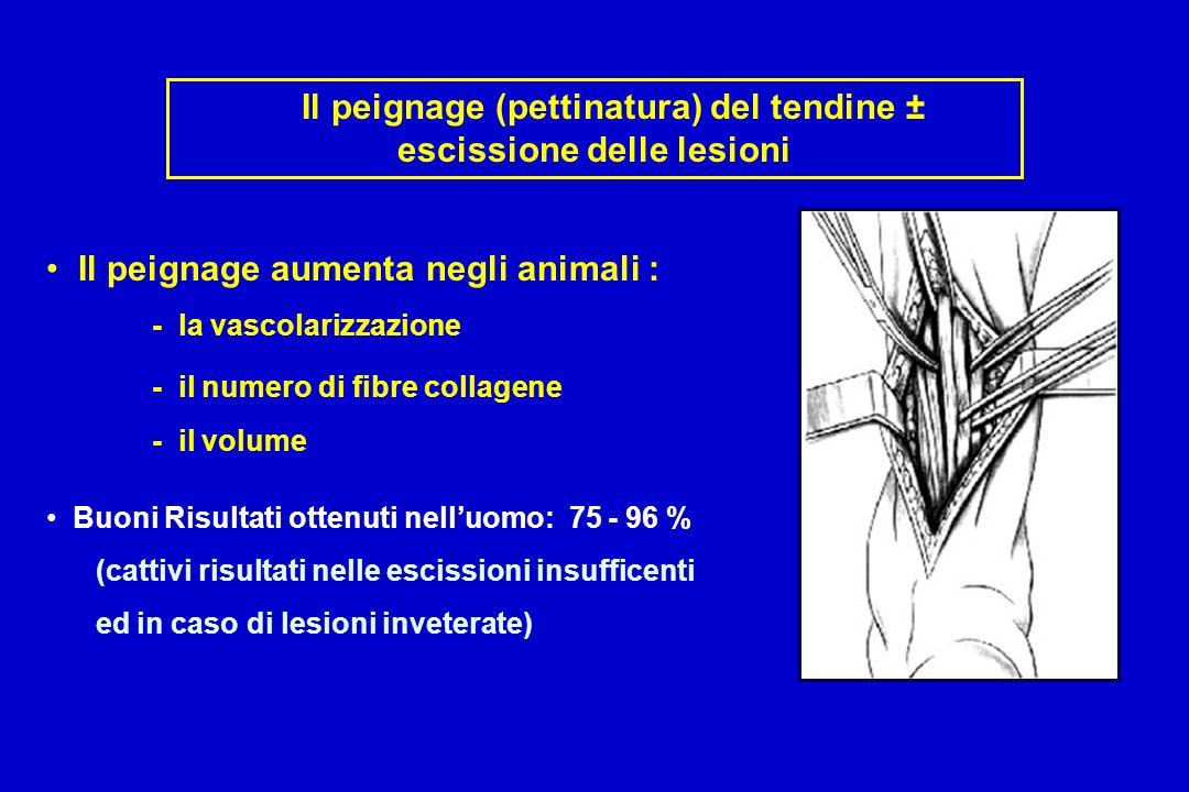 Il peignage (pettinatura) del tendine ± escissione delle lesioni