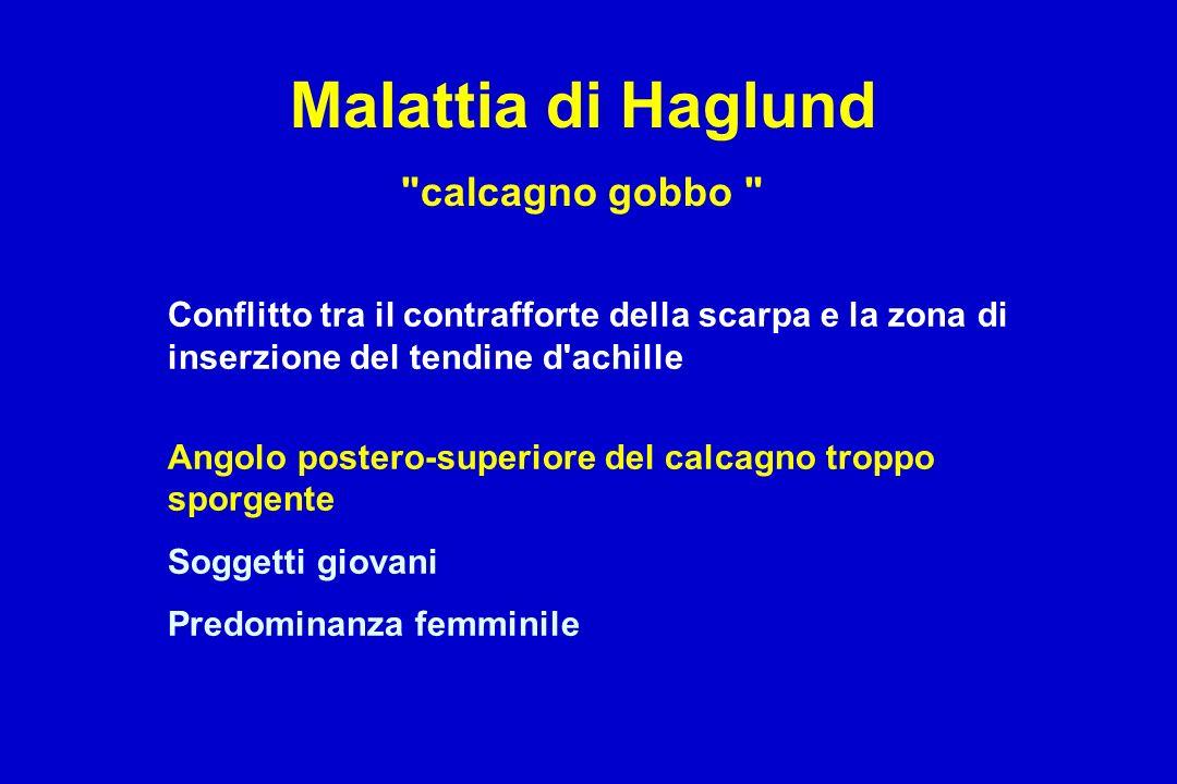 Malattia di Haglund calcagno gobbo