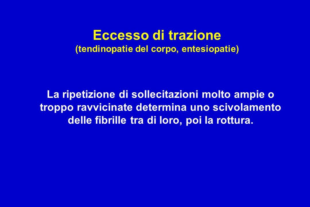 Eccesso di trazione (tendinopatie del corpo, entesiopatie)