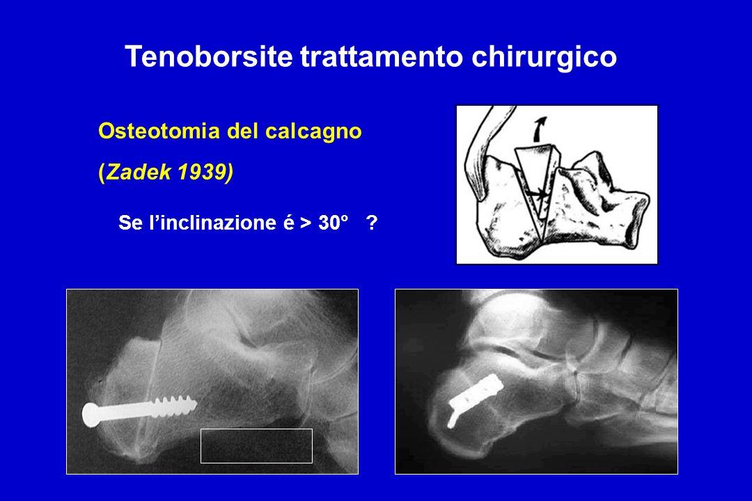 Tenoborsite trattamento chirurgico
