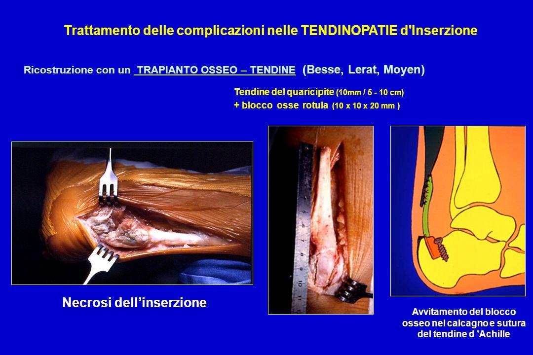 Trattamento delle complicazioni nelle TENDINOPATIE d Inserzione