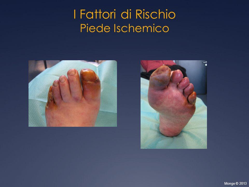 I Fattori di Rischio Piede Ischemico 11