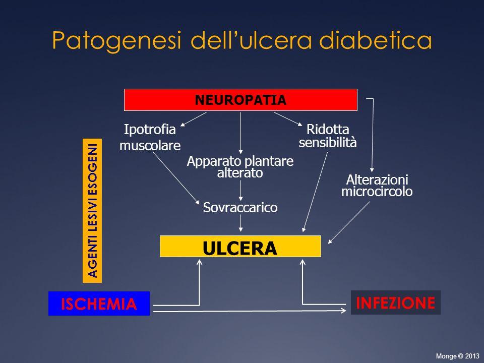 Patogenesi dell'ulcera diabetica