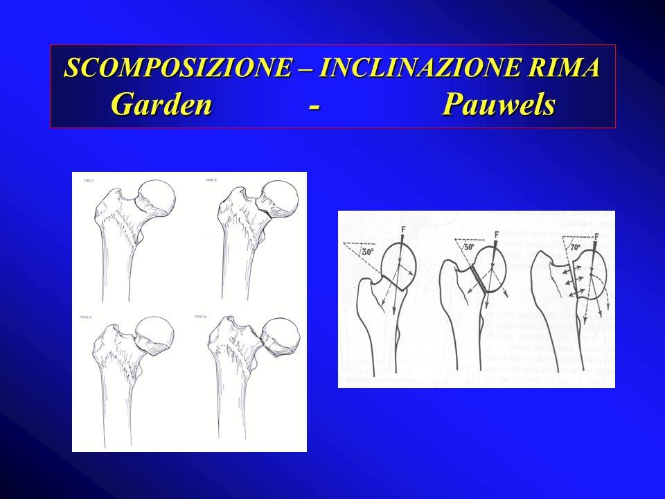 SCOMPOSIZIONE – INCLINAZIONE RIMA Garden - Pauwels