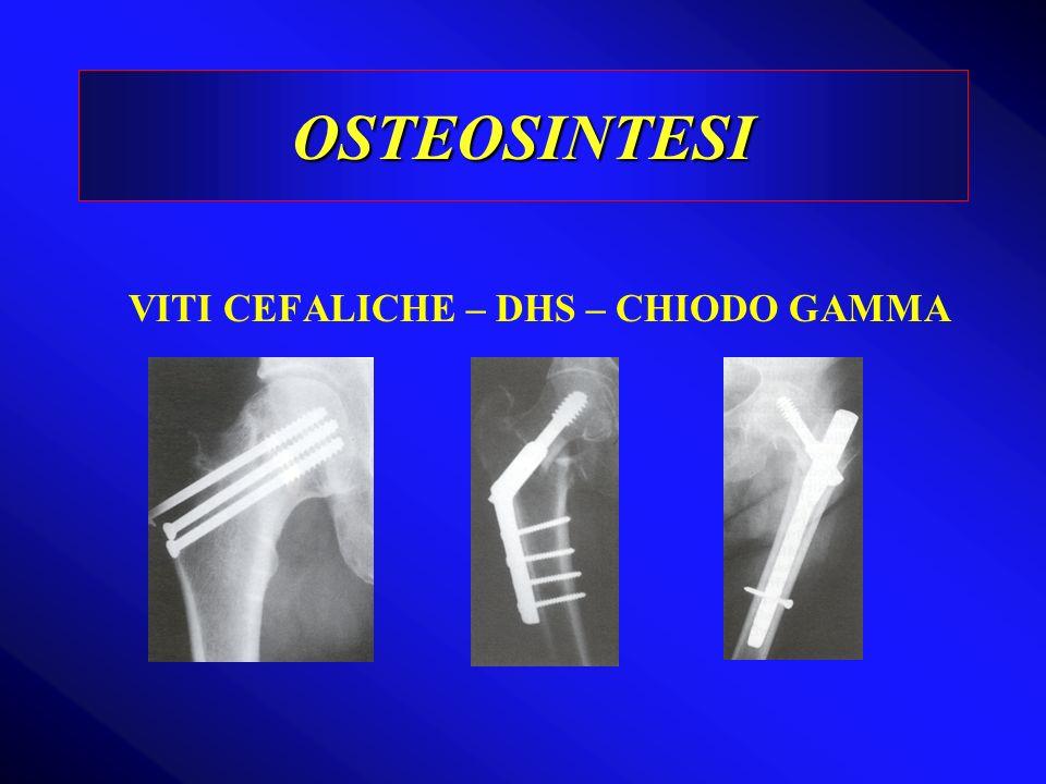 OSTEOSINTESI VITI CEFALICHE – DHS – CHIODO GAMMA