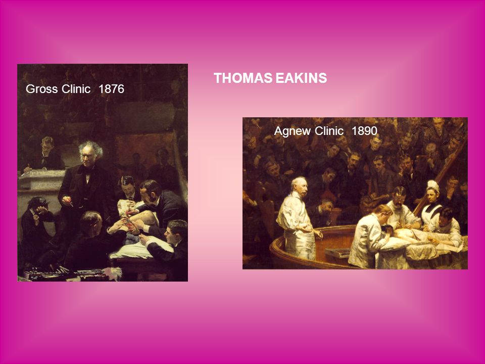 THOMAS EAKINS Gross Clinic 1876 Agnew Clinic 1890