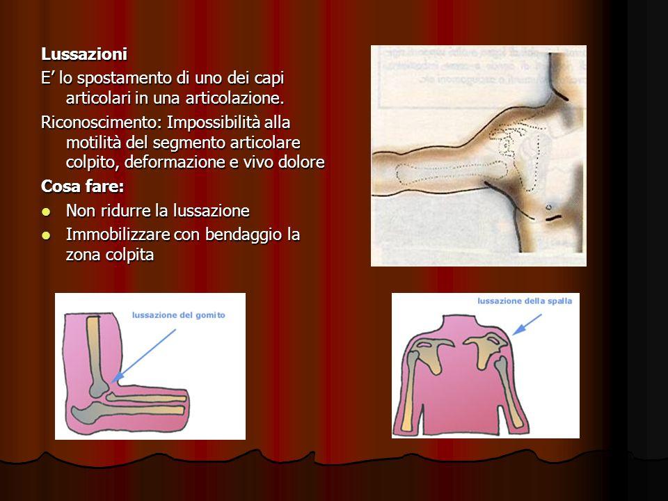 Lussazioni E' lo spostamento di uno dei capi articolari in una articolazione.