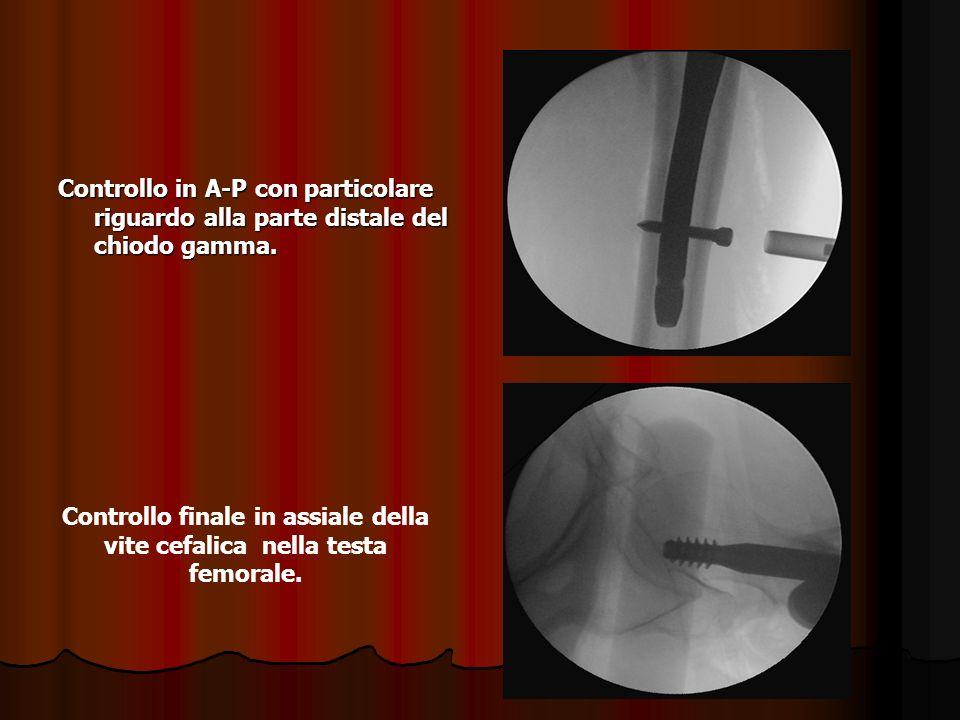 Controllo finale in assiale della vite cefalica nella testa femorale.