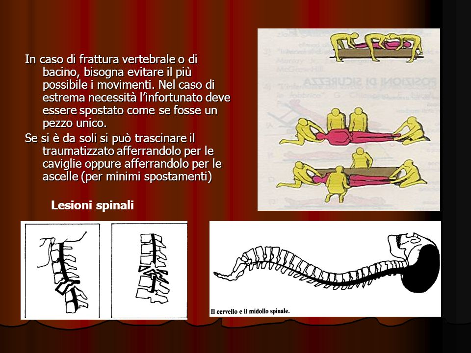 In caso di frattura vertebrale o di bacino, bisogna evitare il più possibile i movimenti. Nel caso di estrema necessità l'infortunato deve essere spostato come se fosse un pezzo unico.