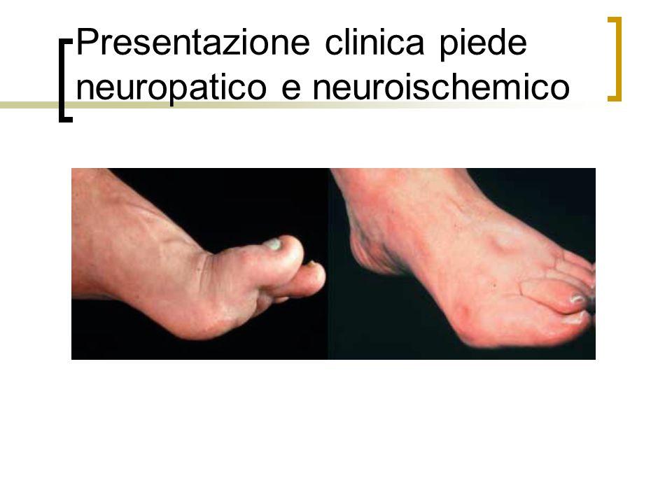 Presentazione clinica piede neuropatico e neuroischemico