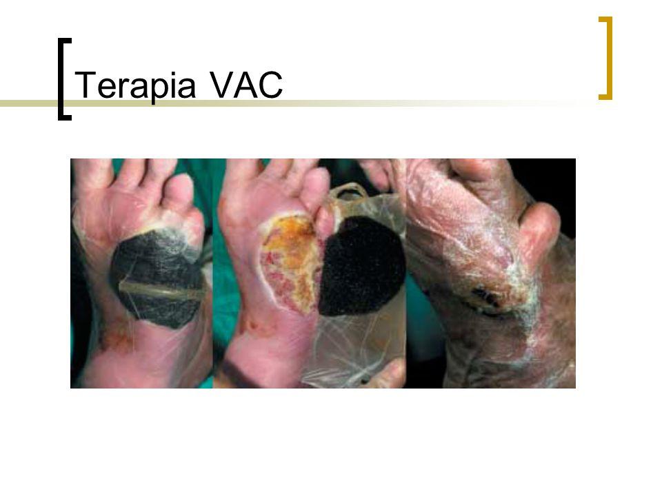 Terapia VAC