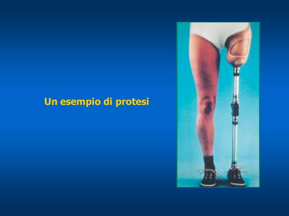 Un esempio di protesi