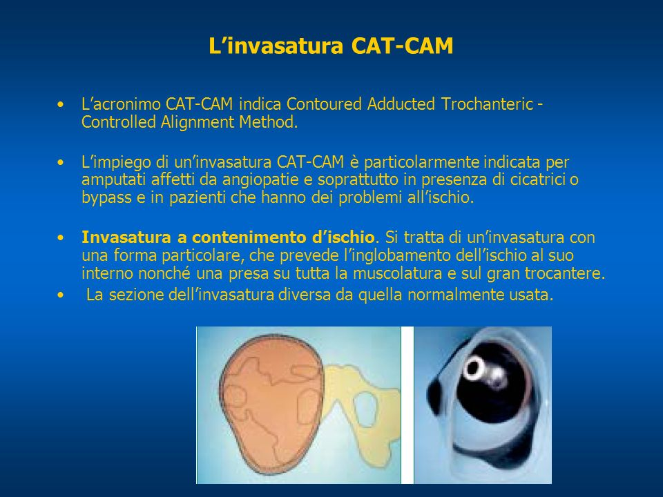 L'invasatura CAT-CAM L'acronimo CAT-CAM indica Contoured Adducted Trochanteric - Controlled Alignment Method.
