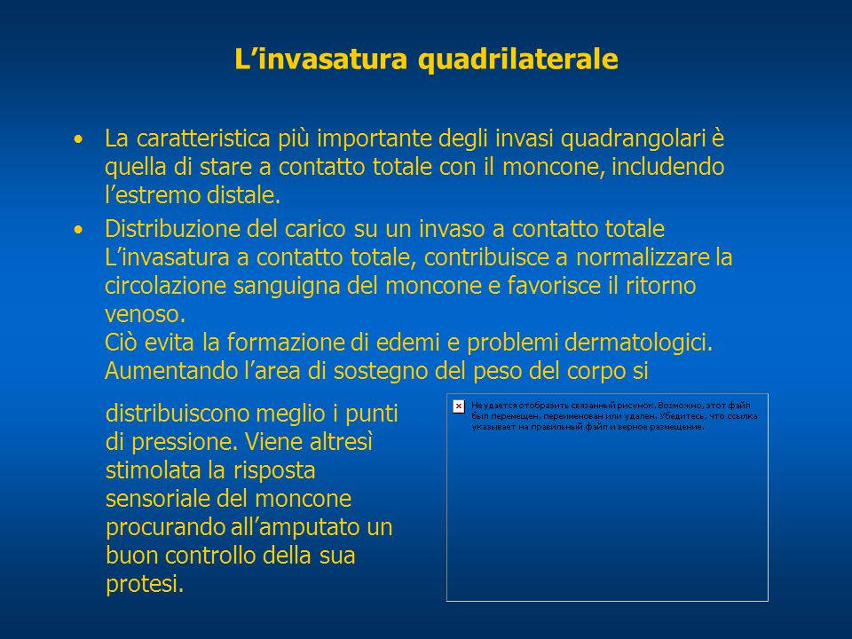 L'invasatura quadrilaterale