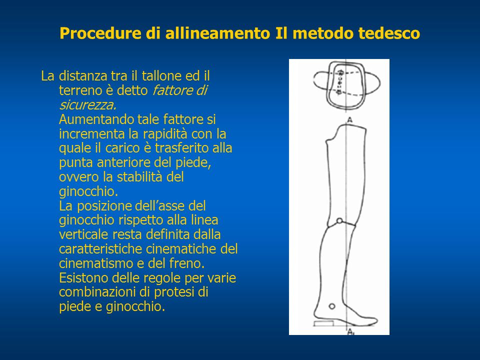 Procedure di allineamento Il metodo tedesco